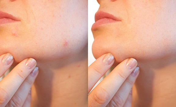 use of Spot Healing Brush for Acne